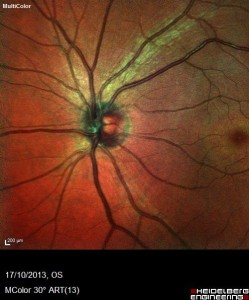 Normal Optic Nerve Appearance