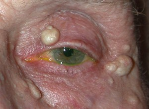 Sebaceous Cyst pre operative