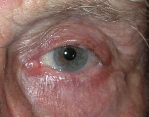 Sebaceous Cysts post operative