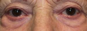 pre operative lower eyelid bags