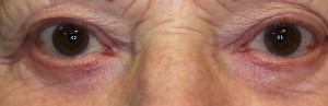 post operative lower eyelid bags