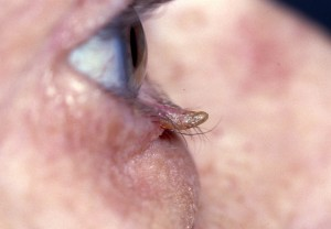 papilloma/skin tag