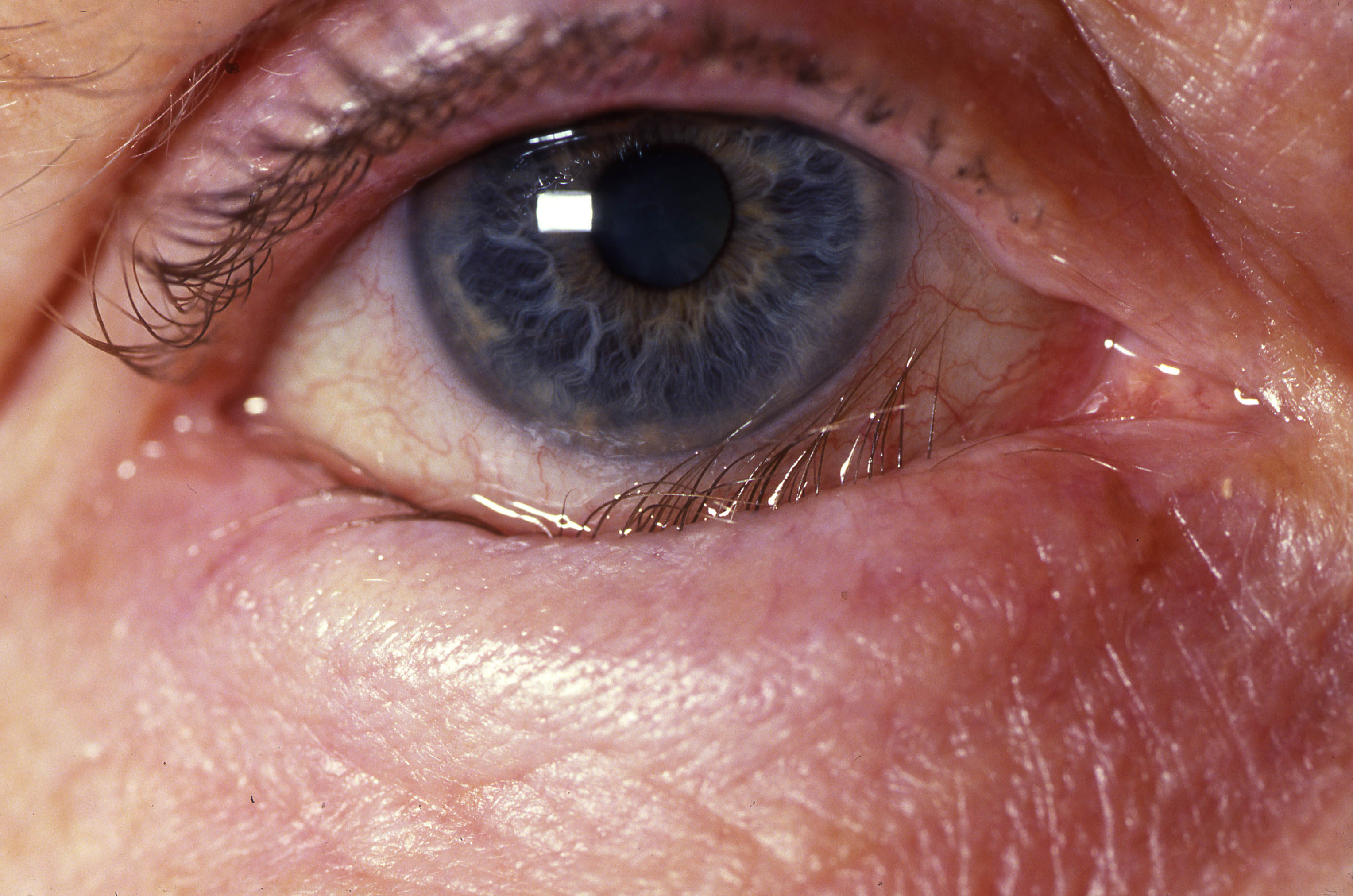 Common Eye Conditions Every Primary Care Clinician Should Know