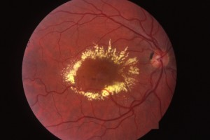 focal diabetic retinopathy with white exudates