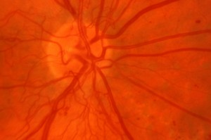 new blood vessels at the optic disc
