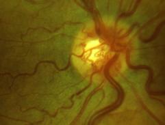 eye-9