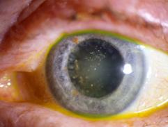 eyey1