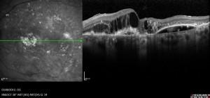advanced  wet macular degeneration