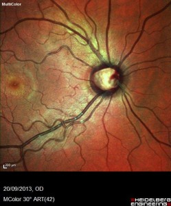 Optic Nerve Appearance with Glaucoma