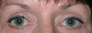 Post operative upper lid blepharoplasty