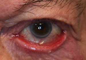 severe ectropion of lower eyelid
