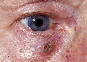 Basal cell carcinoma/rodent ulcer