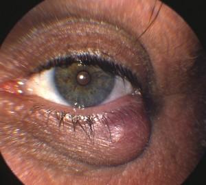 Chalazion type cyst