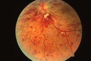 central retinal vein occlusion