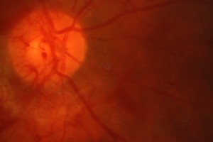 new blood vessels on the optic nerve